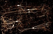 תאי עצב VChIs